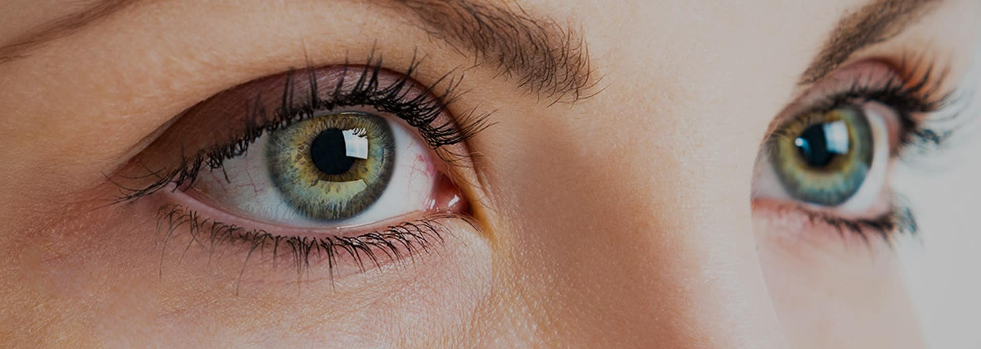 Lynn Valley Optometry offers Dry Eye Therapy